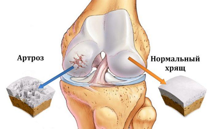 Комплексное лечение артроза коленного сустава
